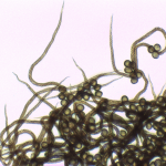 M. floriformis x 400